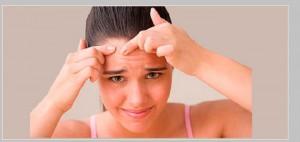 El acné afecta el autoestima de las personas