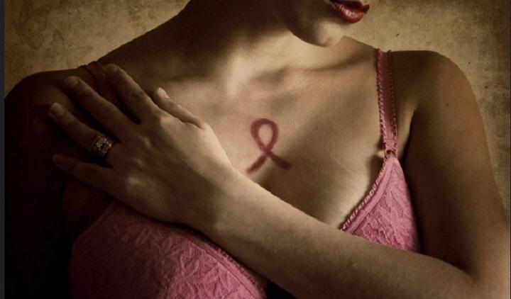 Las mamografías deben realizarse luego de los 35 años de edad